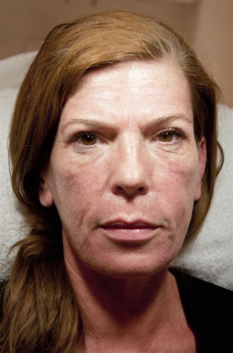 Rimpels verwijderen zonder botox « Total Beauty