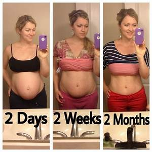92 best Recovery after Baby images on Pinterest ...