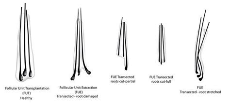 Limits of Hair Transplants and Hair Loss Drugs