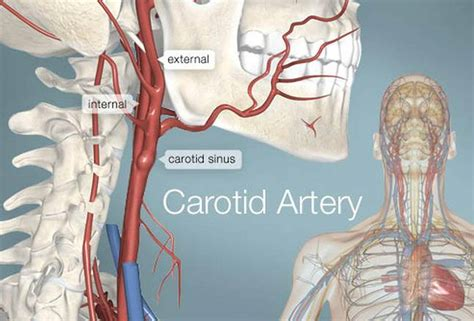 Carotid artery disease is a disease in which a waxy substance called plaque builds up inside the carotid arteries of the neck. Pictures Of Carotid ArteriesHealthiack