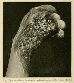 1000+ images about Atlas Medicina on Pinterest | Medical ...