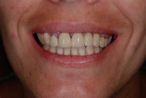dental fixed bridges demajo dental