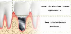 Replacing Single Teeth With Implants