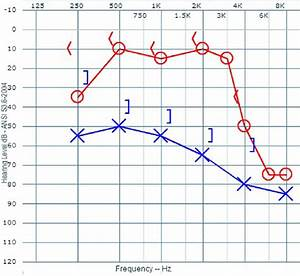 A Pure Tone Audiogram Showing Air