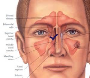 Ear nose and throat pictures earsnoseandthroatdiagrams ears nose and throat diagrams http ccuart Images