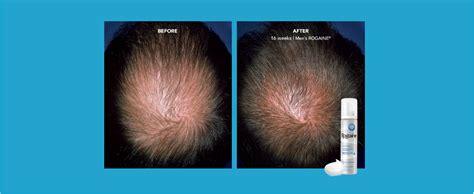 Amazon.com : Men's Rogaine 5% Minoxidil Foam for Hair Loss