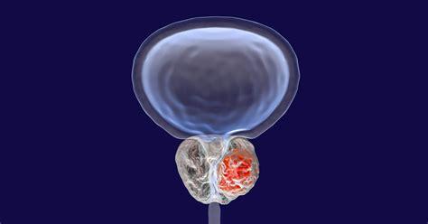prostatavergroesserung ursachen symptome behandlung op