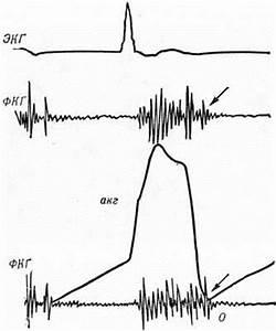 Синдром артериальной гипертонии клиника диагностика