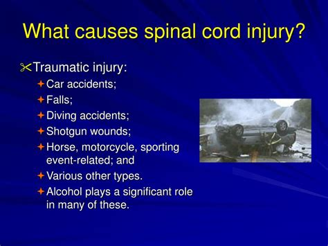 Orthopedic Impairments Powerpoint Presentation