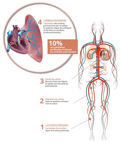 dermite du si鑒e thrombose veineuse profonde phlébite profonde