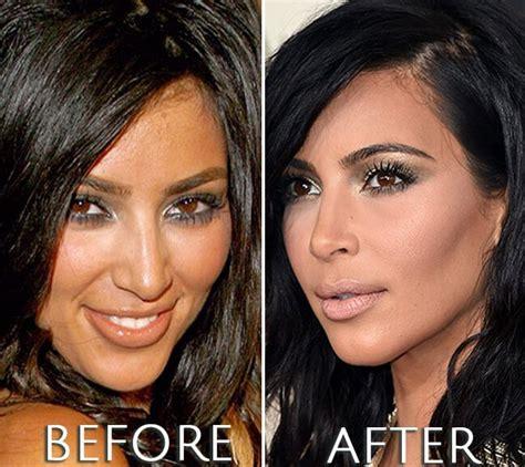 Kim Kardashian before and after photo   Kim kardashian ...