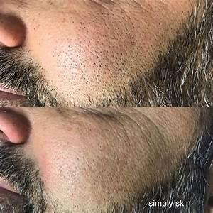Man Pulls Ingrown Hair From Face