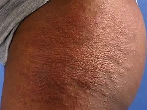 Zeer droge huid benen