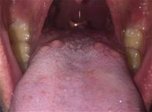 Bumps on Back of Tongue: White, Red, Sore Throat, Pictures ...