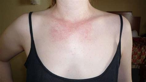 Causes, Symptoms, Treatment, Rash, Pictures