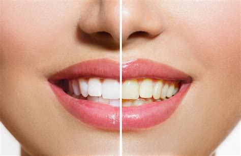 Best Tooth Whitening by Best Teeth Whitening Products That Actually Work Autumn