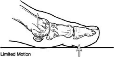 hallux range of motion hallux rigidus foot and ankle specialists of middle tennessee