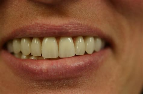 dr robert  tupac prosthodontics tooth position