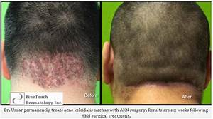 Bumps On Back Of Head After Haircut | www.pixshark.com ...