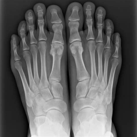 bulge  metatarsal bone stress fracture   ray