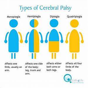 Did you know there are different types of cerebral palsy ...