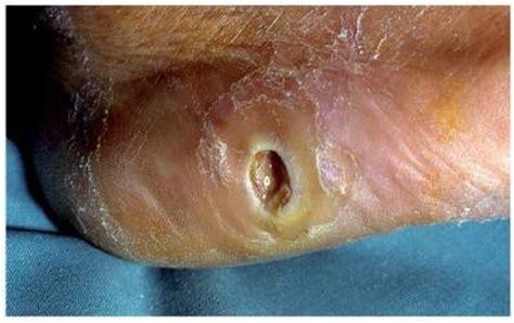 ulceras en los pies por diabetes wikicharlie