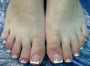 Как лечить грибок ногтей на ногах но ноготь удаление