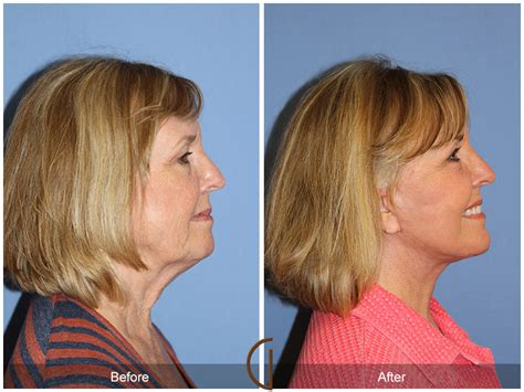 Traditional Facelift  Orange County Top Plastic Surgeon. Air Conditioning Clearwater 18 Traffic Cone. Sociolinguistics Graduate Programs. Psychiatric Mental Health Nurse Practitioner. Gis Certificate Programs Stump Grinding Tulsa. Accredited Law School Online. Roofing Fort Lauderdale Risk Management Tools. Internet Providers Puyallup Wa. Mobile Content Management System