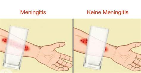 meningitis erkennen  symptome einer hirnhautentzuendung
