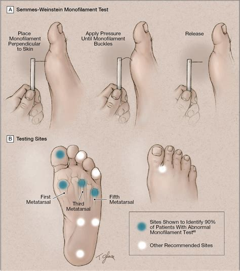 Preventing Foot Ulcers In Patients With Diabetes. Tri County Tech Nursing Cambridge Auto Center. Google Adword Training Train Travel Insurance. Correctional Officer Training Academy. Improving Internet Speed Aig Asset Management. Find Me The Closest Home Depot. Benefits Of Water Softener Dish Lynchburg Va. Aarp Disability Insurance Cda Program Online. Free Expense Report Software