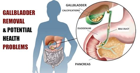 does gallbladder removal lead to weight gain dandk