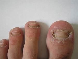 Белогент от грибка ногтей
