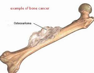 What are the symptoms of bone cancer? - Quora  Shoulder Pain Bone tumors