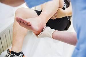 Ruptured Achilles Tendon  Symptoms And Treatment