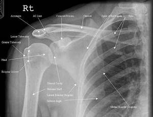 Related Keywords & Suggestions for normal clavicle x ray
