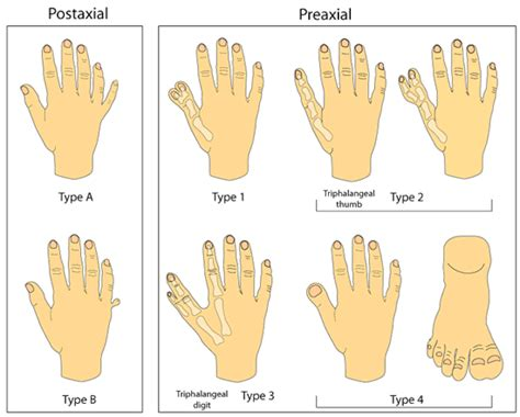 Diagrams Of Images Of Humand Types Of Polydactyly