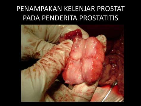 obat penyakit prostatitis radang kelenjar prostat