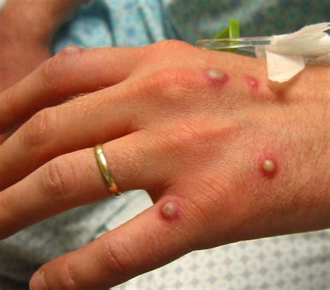 Rash Vesicular Causes Symptoms Treatment Rash Vesicular