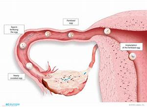 Gynaecology - Medical Illustration