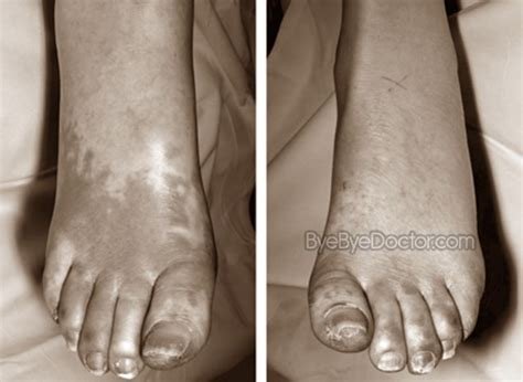 charcot foot treatment
