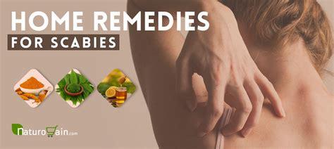 home remedies  scabies simple herbal treatments