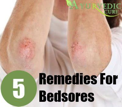 32186 new bed sore treatment bedsores home remedies treatments cure herbal