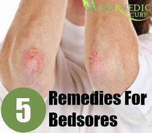 bedsores home remedies natural treatments cure herbal With best treatment for pressure sores