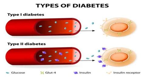 type   type  diabetes    difference read