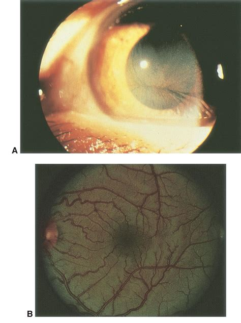 fabry disease american academy  ophthalmology