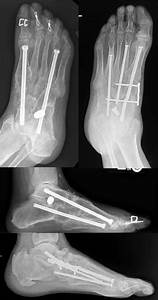 Superconstruct With Locking Plate Fixation For Acute Charcot That Had