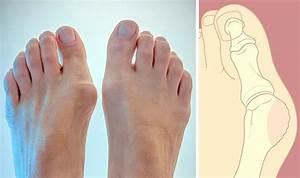 Болит сустав в большом пальце ноги