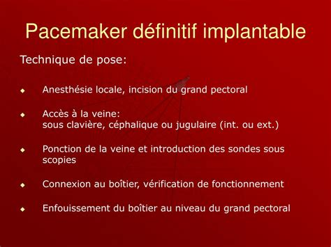 pacemaker chambre ppt pace makers powerpoint presentation id 235707
