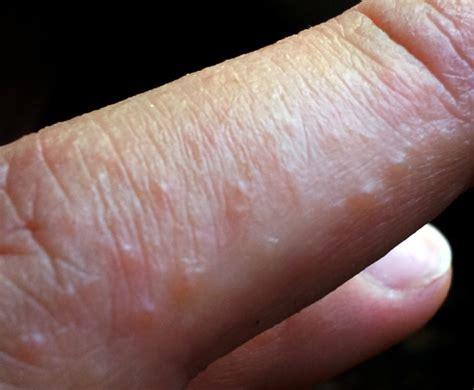 bultjes op de huid die jeuken