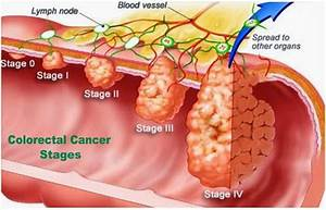 Colorectal Cancer  Causes  Symptoms And Signs